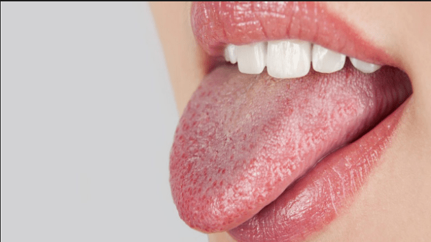 جفاف الفم