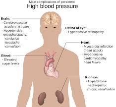 صورة اسباب ارتفاع ضغط الدم المفاجئ