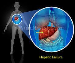 الفشل الكبدي