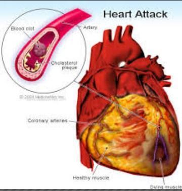 صورة اسباب واعراض جلطة القلب