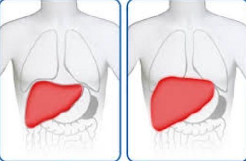 صورة اسباب مرض تضخم الكبد وعلاجه