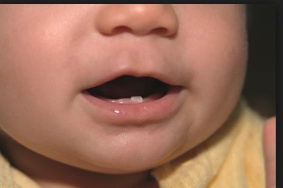 صورة اعراض التسنين عند الاطفال والرضع
