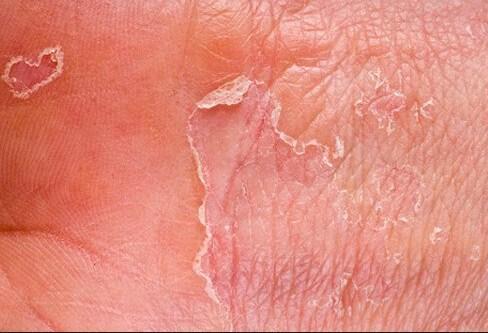 Photo of مرض الاكزيما الجلدية بالصور