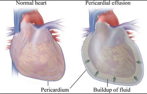 Photo of هل التهاب غشاء القلب خطير