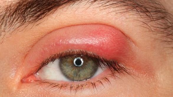 صورة علاج التهاب جفن العين بالاعشاب