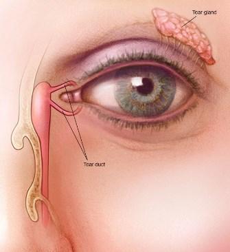 علاج انسداد القناة الدمعية