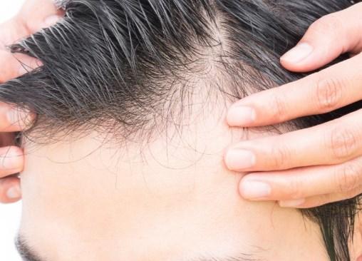 Photo of علاج تساقط الشعر والصلع الوراثي بالاعشاب