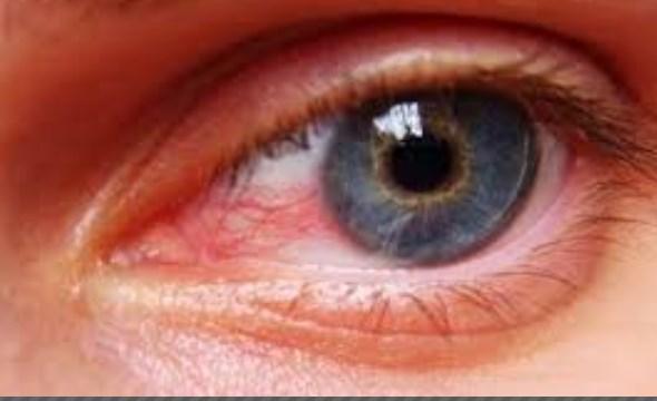 صورة علاج اجهاد وارهاق العين المزمن بالاعشاب