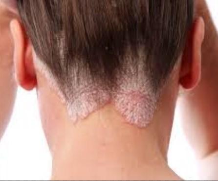 علاج نمو الشعر تحت الجلد