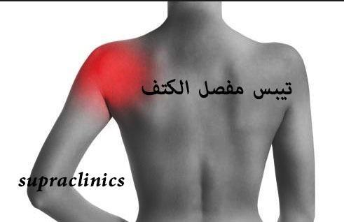 Photo of اعراض الكتف المتجمد وتيبس الكتف