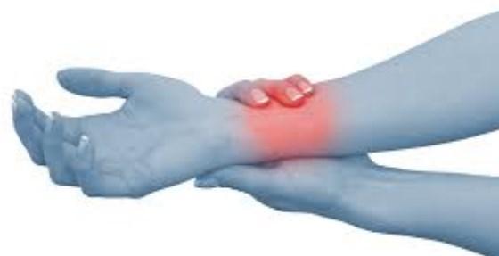 صورة علاج اختناق عصب اليد
