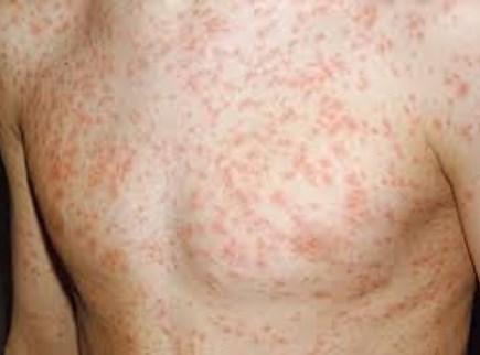 صورة معلومات عن مرض الحصبة الالمانية