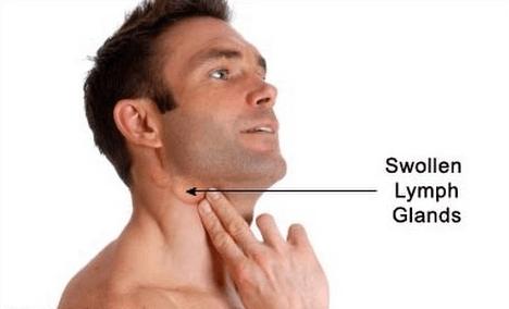 هل يمكن الشفاء من سرطان الغدد الليمفاوية