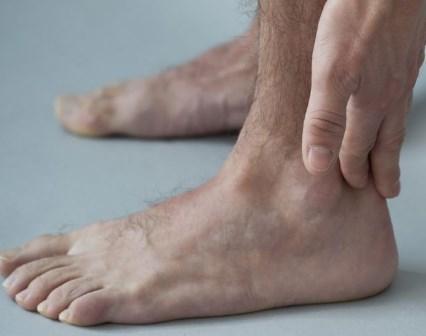صورة اعراض واسباب وطرق علاج التهاب وتر اكيلس