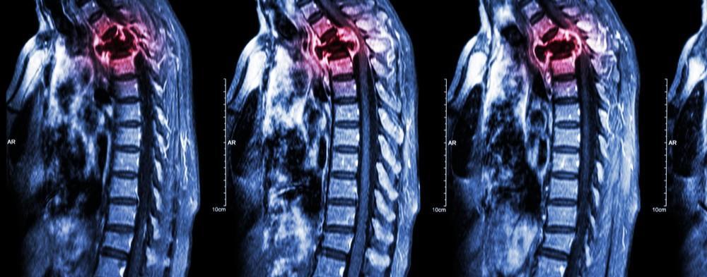 أعراض ورم ضاغط على النخاع الشوكي