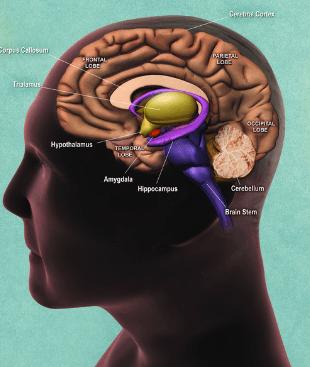 الورم الدبقي في جذع الدماغ