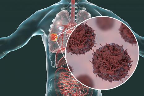 Photo of اعراض سرطان الرئة المتقدمة