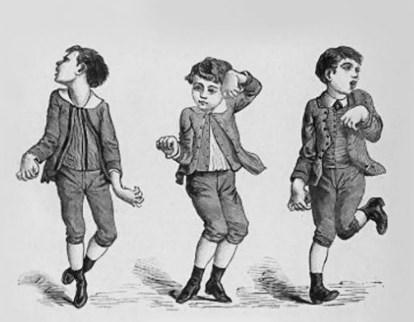 مرض الرقص