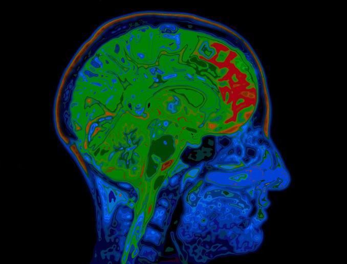 قصور الدورة الدموية للمخ