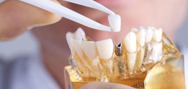 Photo of عملية زرع الاسنان بالصور