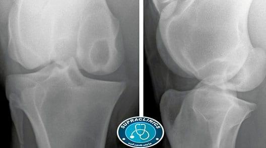 صورة الكيس العظمي
