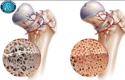 Photo of مرض نقصان الدم المزود للعظام