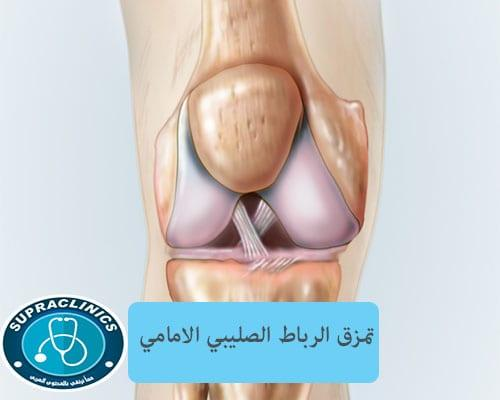 صورة الرباط الصليبي الامامي للركبة