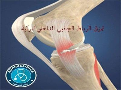 تمزق الرباط الجانبي الداخلي للركبة