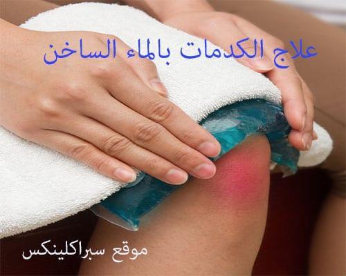 علاج الكدمات بالماء الساخن