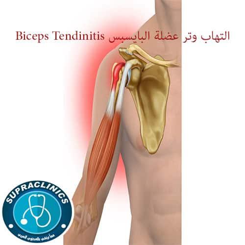 التهاب وتر عضلة البايسبس الأسباب الأعراض العلاج
