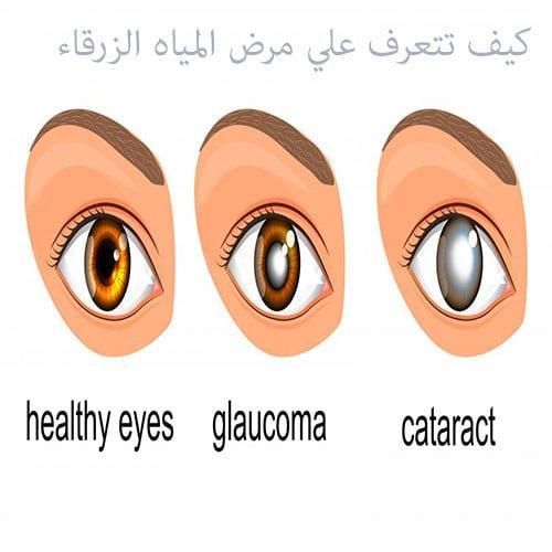 "Photo of أهم المعلومات عن مرض المياه الزرقاء في العين ""الجلوكوما"""
