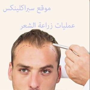 Photo of معلومات مهمة عن عملية زراعة الشعر بدون حلاقة