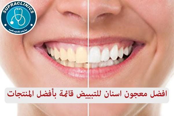 Photo of افضل معجون اسنان للتبييض قائمة بأفضل المنتجات