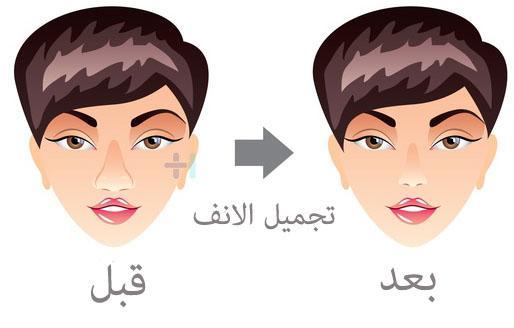 Photo of متوسط اسعار عمليات تجميل الانف فى مصر