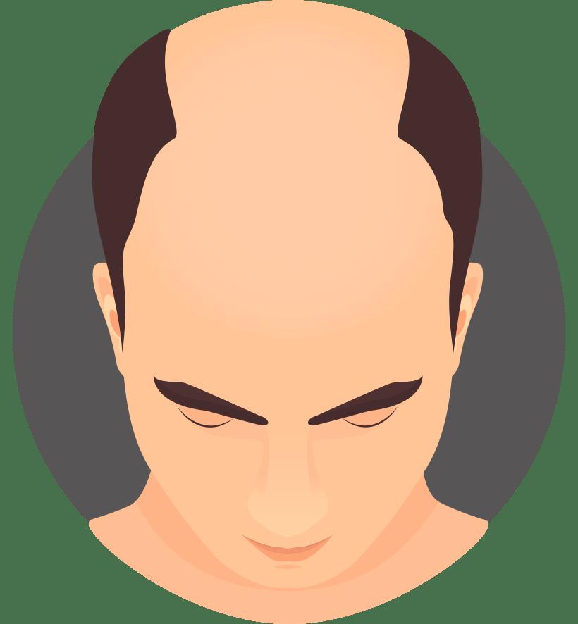 صورة علاج الشعر الخفيف للرجال بالاعشاب