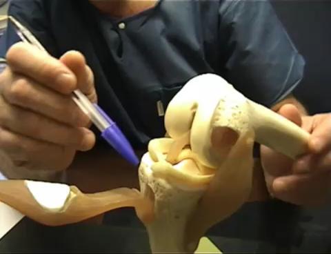 آلية عمل حقن البلازما للركبة