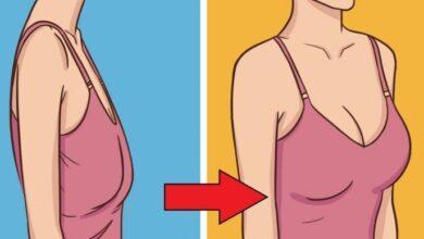 صورة عملية شد ترهلات الثدي