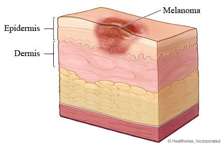 Benign Melanoma