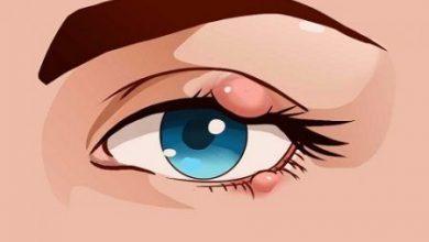 Upper Eyelid Inflammation
