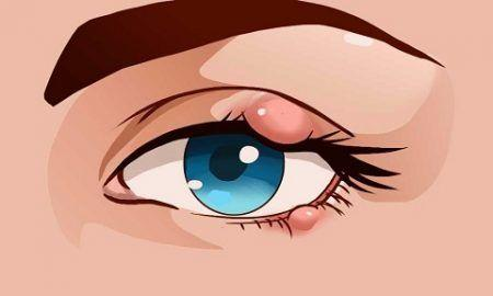 Upper Eyelid Inflammation